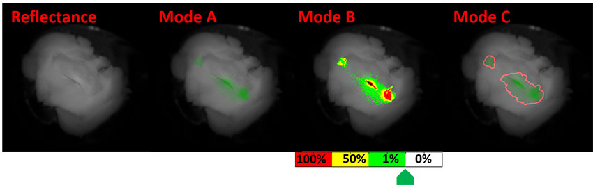 full-color reflectance image shown in grayscale on the left and modes that highlight cancer cells on the right